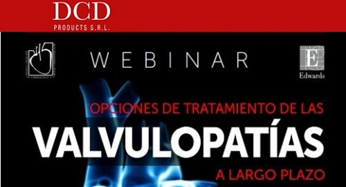 Webinar Edwards - Sochicar: